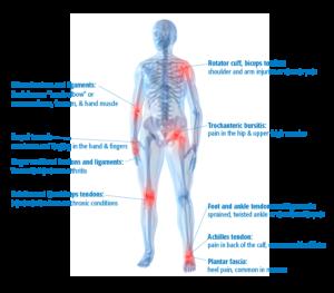 MSK Body Chart