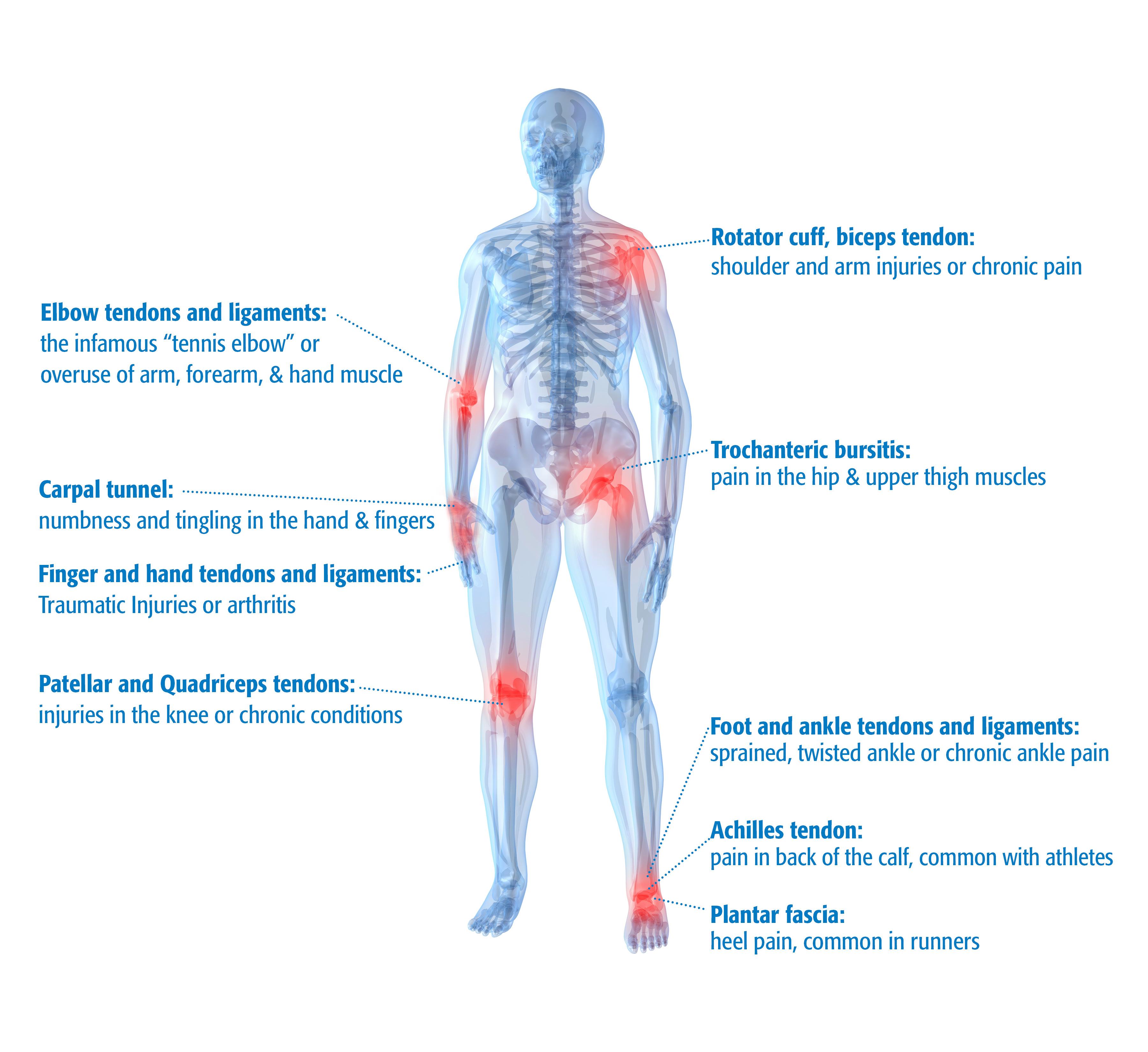MSK Body Chart - Regional Medical Imaging