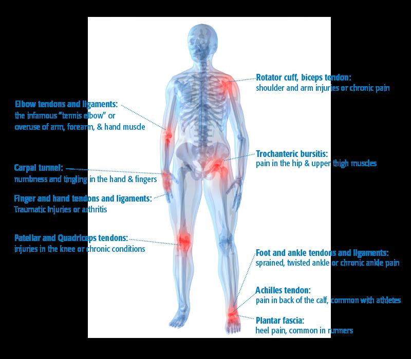RMI | Musculoskeletal Ultrasound (MSK)