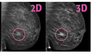3d Mammograms Come To Rmi Tomosynthesis Regional Medical Imaging